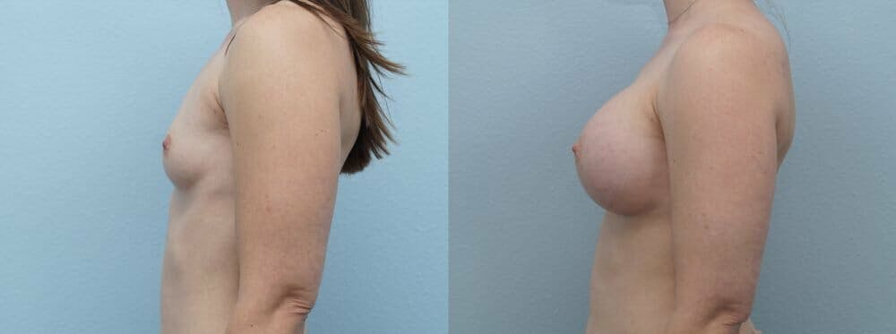 Breast Augmentation Gallery - Patient 48813631 - Image 5