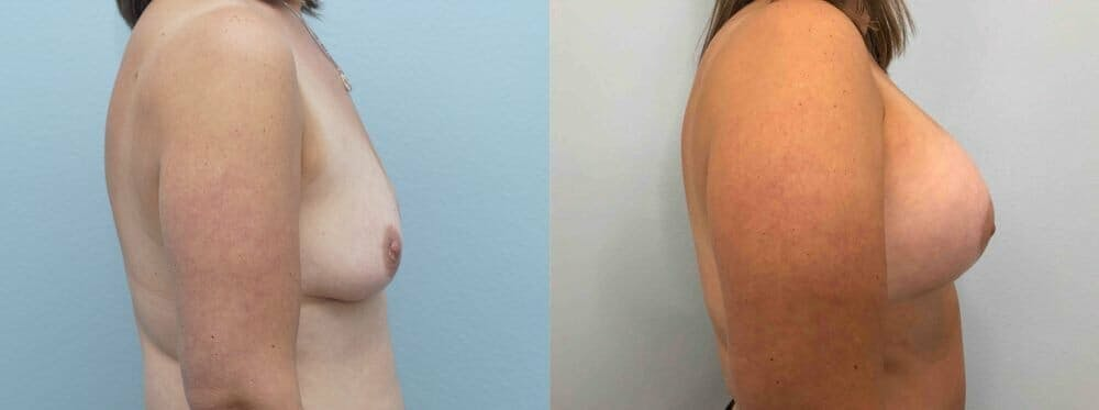 Breast Lift With Implants Gallery - Patient 48813633 - Image 5