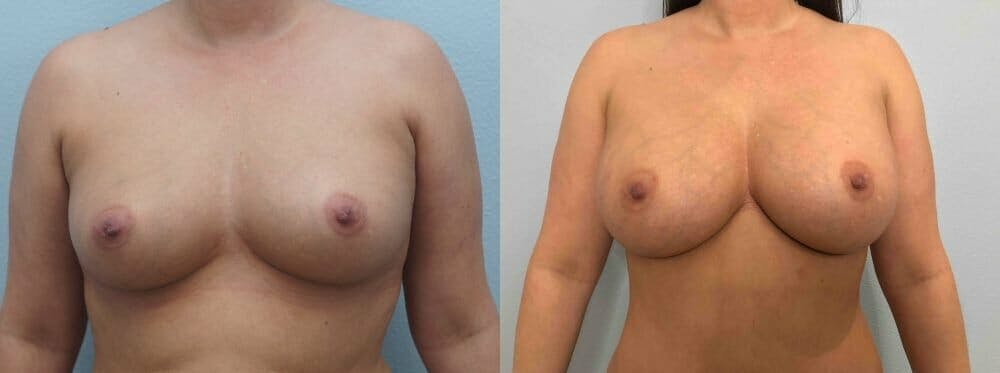 Breast Augmentation Gallery - Patient 48813637 - Image 1