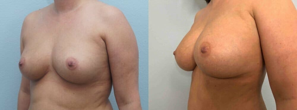 Breast Augmentation Gallery - Patient 48813637 - Image 2