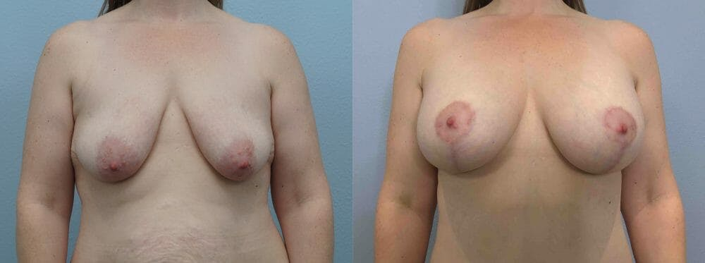 Breast Lift With Implants Gallery - Patient 48813641 - Image 1