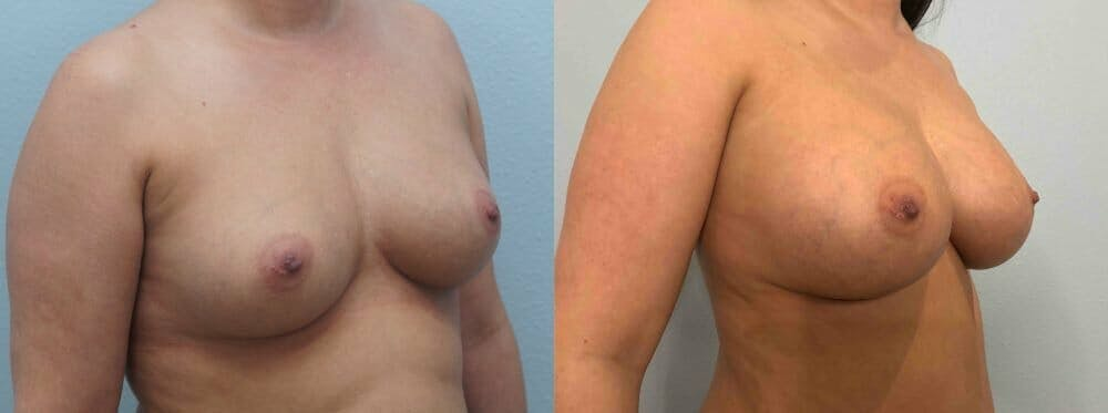 Breast Augmentation Gallery - Patient 48813637 - Image 4