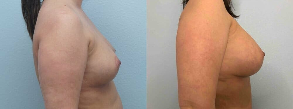 Breast Augmentation Gallery - Patient 48813637 - Image 5