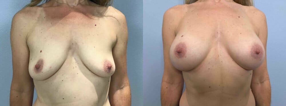 Breast Augmentation Gallery - Patient 48813644 - Image 1