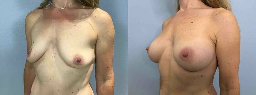 Breast Augmentation Gallery - Patient 48813644 - Image 2