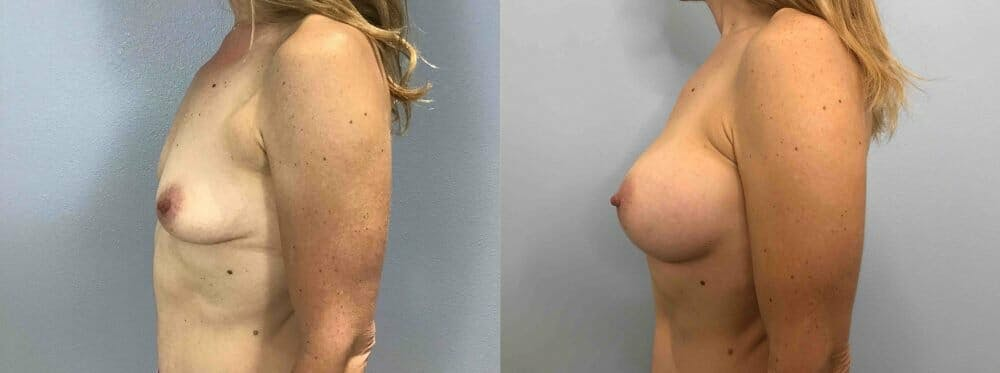 Breast Augmentation Gallery - Patient 48813644 - Image 3