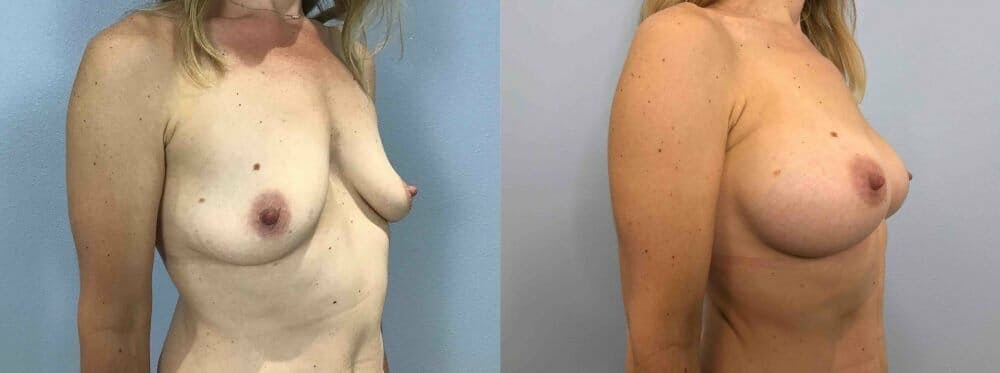 Breast Augmentation Gallery - Patient 48813644 - Image 4