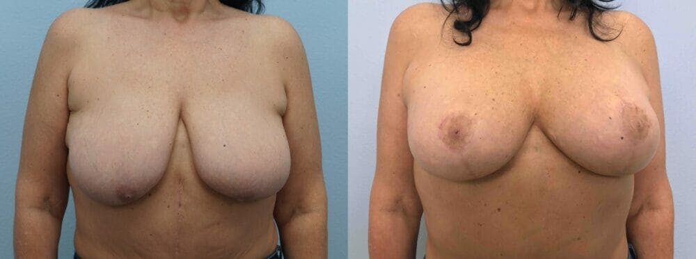 Breast Lift With Implants Gallery - Patient 48813653 - Image 1