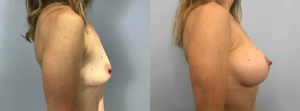 Breast Augmentation Gallery - Patient 48813644 - Image 5