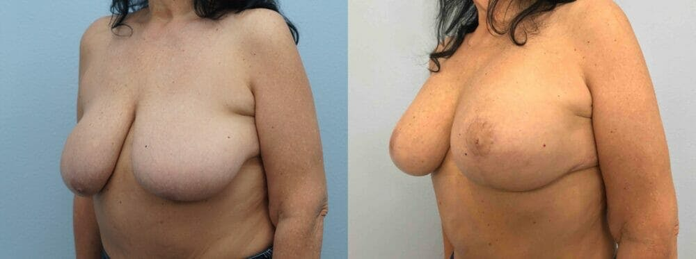 Breast Lift With Implants Gallery - Patient 48813653 - Image 2