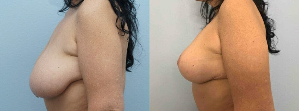 Breast Lift With Implants Gallery - Patient 48813653 - Image 3
