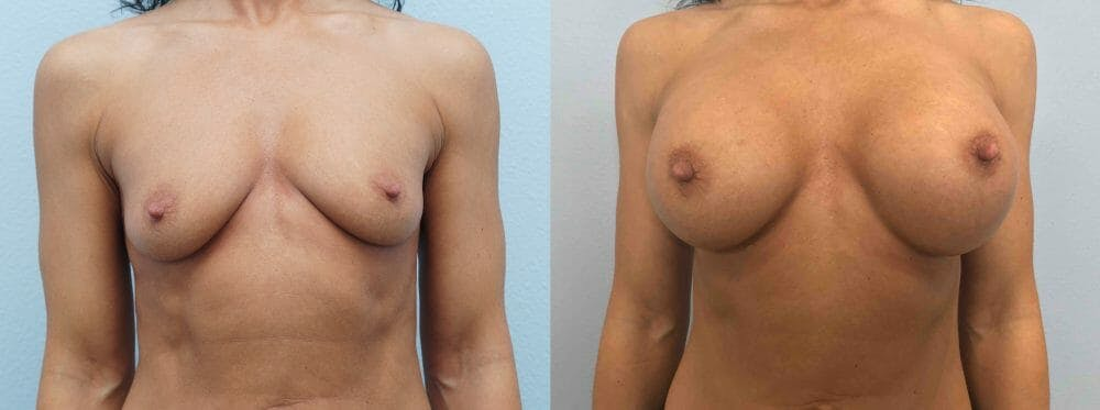 Breast Augmentation Gallery - Patient 48813660 - Image 1