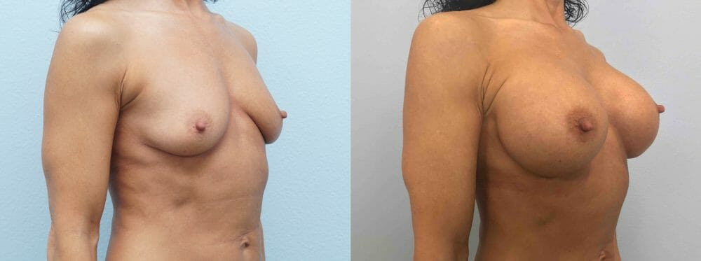 Breast Augmentation Gallery - Patient 48813660 - Image 2