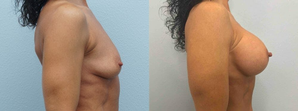Breast Augmentation Gallery - Patient 48813660 - Image 3