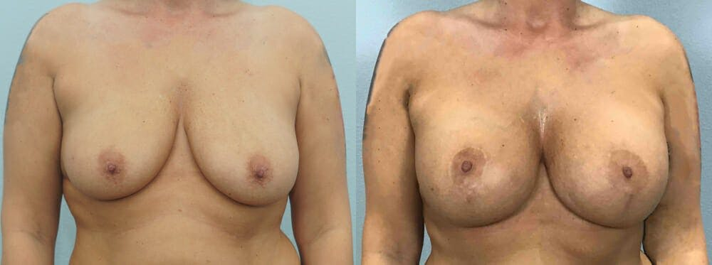 Breast Lift With Implants Gallery - Patient 48813661 - Image 1