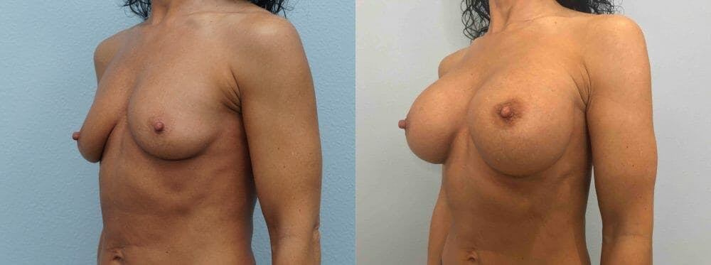 Breast Augmentation Gallery - Patient 48813660 - Image 4