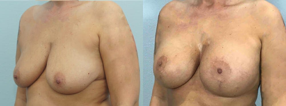 Breast Lift With Implants Gallery - Patient 48813661 - Image 2