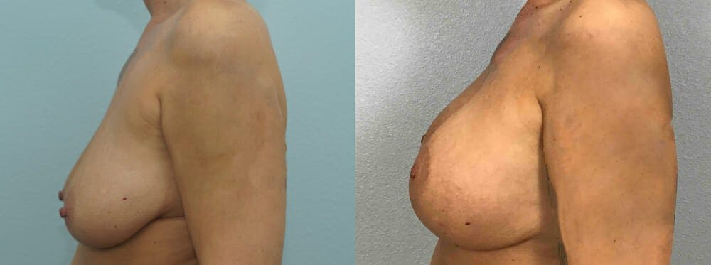 Breast Lift With Implants Gallery - Patient 48813661 - Image 3