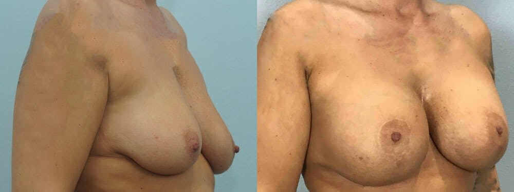 Breast Lift With Implants Gallery - Patient 48813661 - Image 4