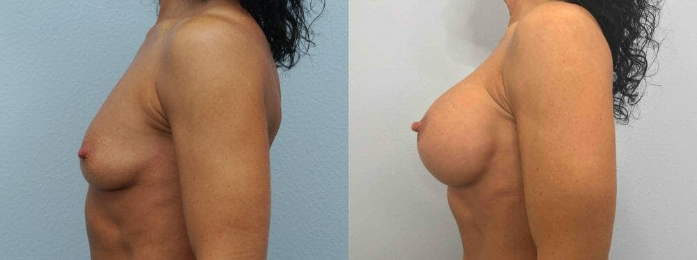 Breast Augmentation Gallery - Patient 48813660 - Image 5