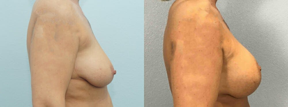 Breast Lift With Implants Gallery - Patient 48813661 - Image 5