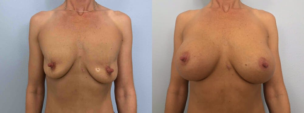 Breast Augmentation Gallery - Patient 48813666 - Image 1