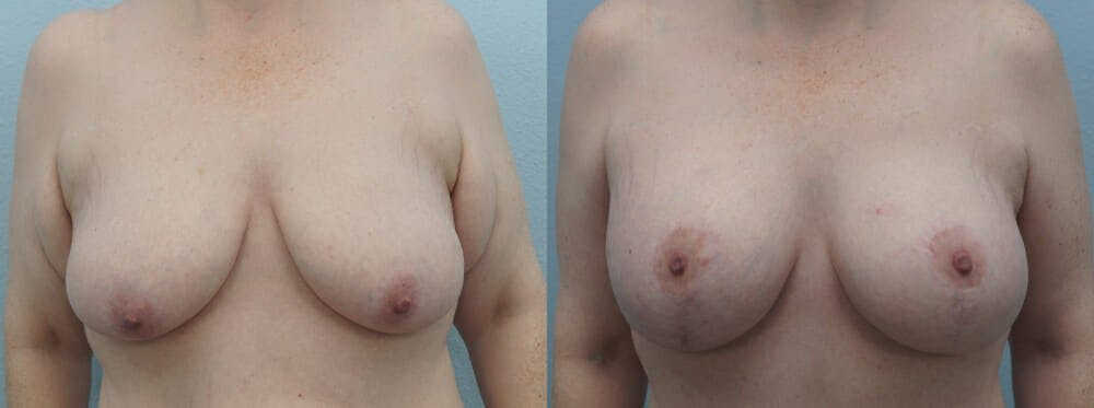 Breast Lift With Implants Gallery - Patient 48813670 - Image 1