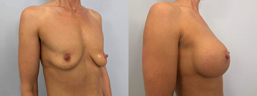 Breast Augmentation Gallery - Patient 48813666 - Image 2