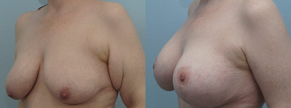 Breast Lift With Implants Gallery - Patient 48813670 - Image 2