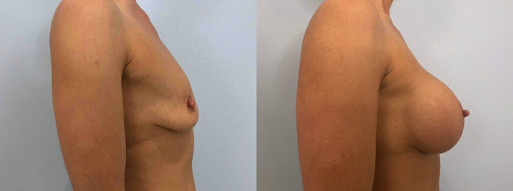 Breast Augmentation Gallery - Patient 48813666 - Image 3