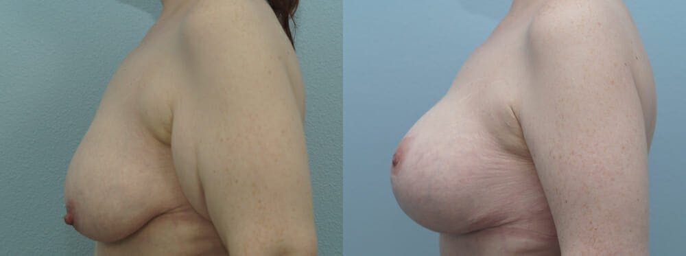 Breast Lift With Implants Gallery - Patient 48813670 - Image 3