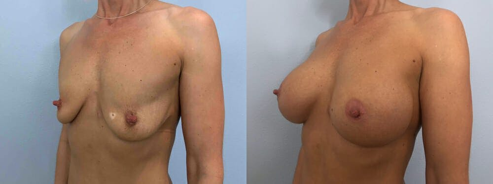 Breast Augmentation Gallery - Patient 48813666 - Image 4