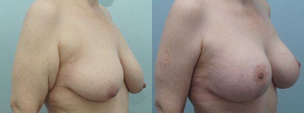 Breast Lift With Implants Gallery - Patient 48813670 - Image 4