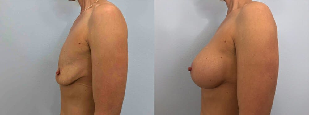Breast Augmentation Gallery - Patient 48813666 - Image 5