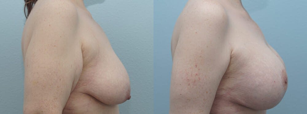 Breast Lift With Implants Gallery - Patient 48813670 - Image 5