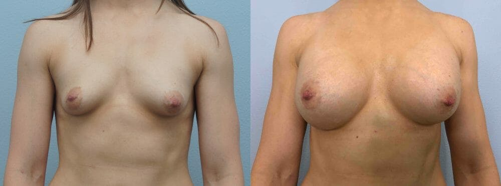 Breast Augmentation Gallery - Patient 48813676 - Image 1