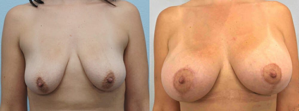 Breast Lift With Implants Gallery - Patient 48813675 - Image 1