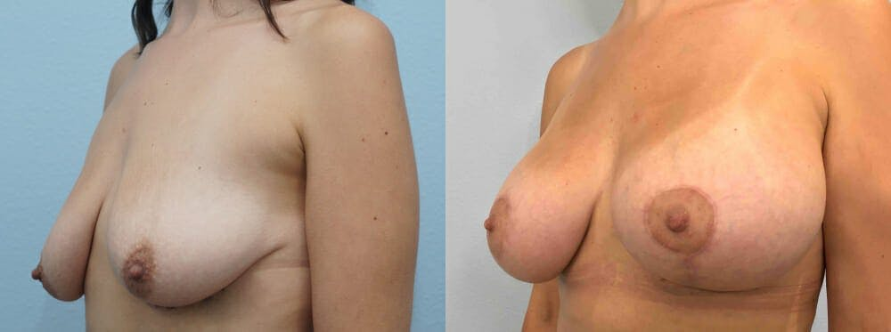 Breast Lift With Implants Gallery - Patient 48813675 - Image 2