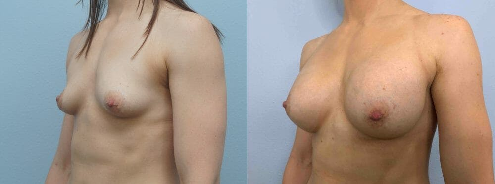 Breast Augmentation Gallery - Patient 48813676 - Image 2