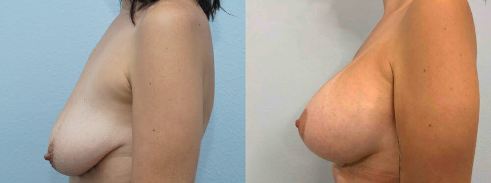 Breast Lift With Implants Gallery - Patient 48813675 - Image 3