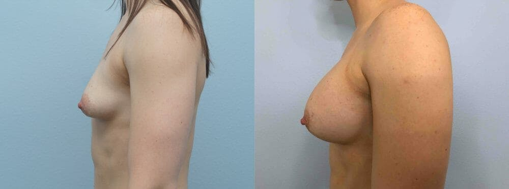 Breast Augmentation Gallery - Patient 48813676 - Image 3