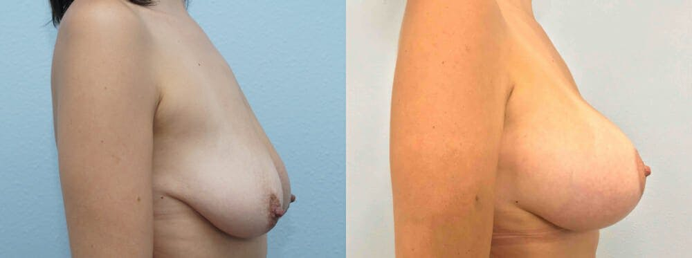 Breast Lift With Implants Gallery - Patient 48813675 - Image 4