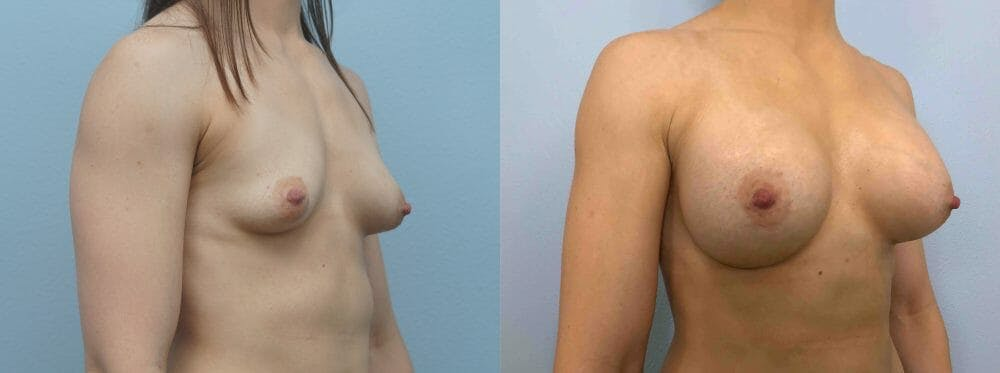 Breast Augmentation Gallery - Patient 48813676 - Image 4