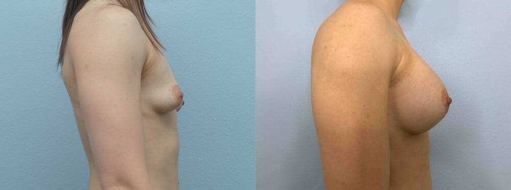 Breast Augmentation Gallery - Patient 48813676 - Image 5