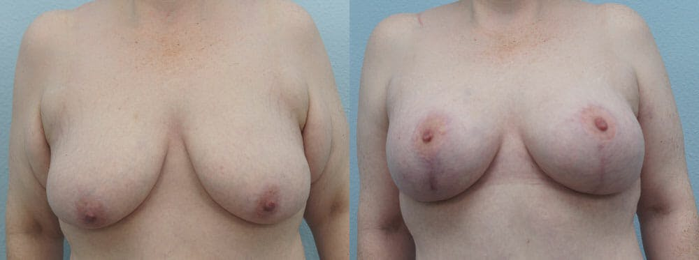 Breast Lift With Implants Gallery - Patient 48813683 - Image 1