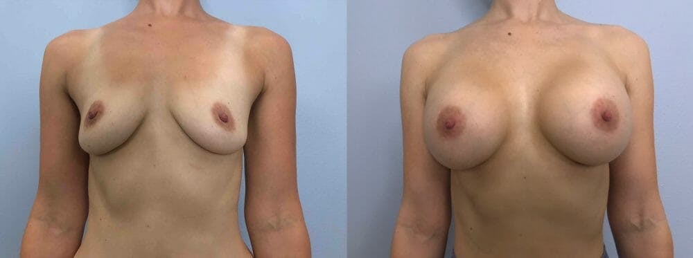Breast Augmentation Gallery - Patient 48813681 - Image 1