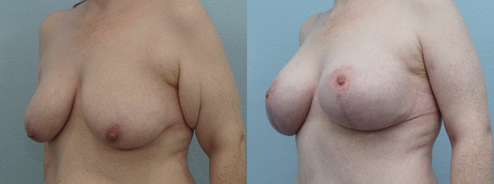Breast Lift With Implants Gallery - Patient 48813683 - Image 2