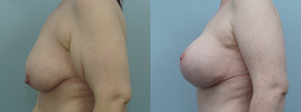 Breast Lift With Implants Gallery - Patient 48813683 - Image 3