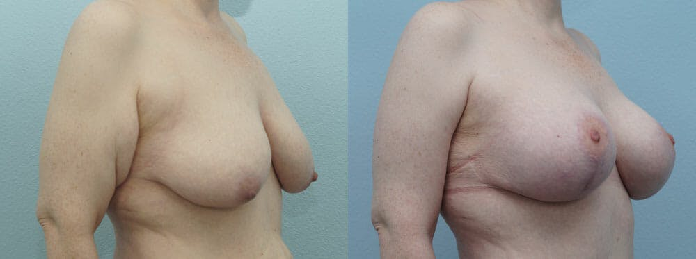 Breast Lift With Implants Gallery - Patient 48813683 - Image 4