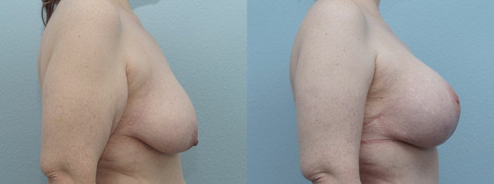 Breast Lift With Implants Gallery - Patient 48813683 - Image 5